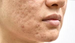 atrophe-narbenbildung-nach-akne-vulgaris